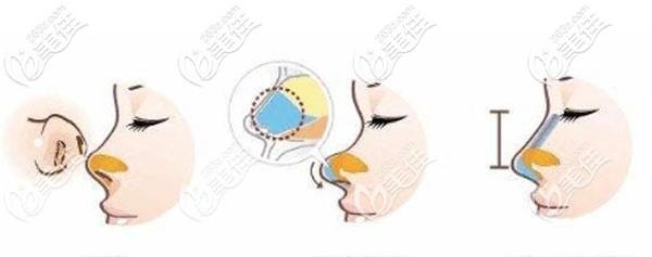 密斯燕尾型鼻综合技术优势