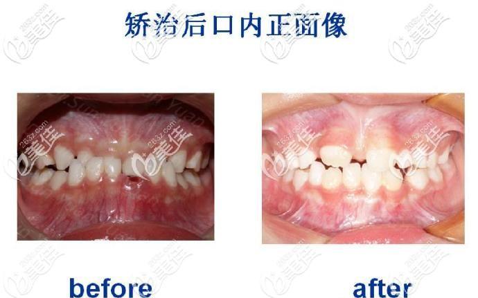 苏州牙博士口腔儿童牙齿矫正案例