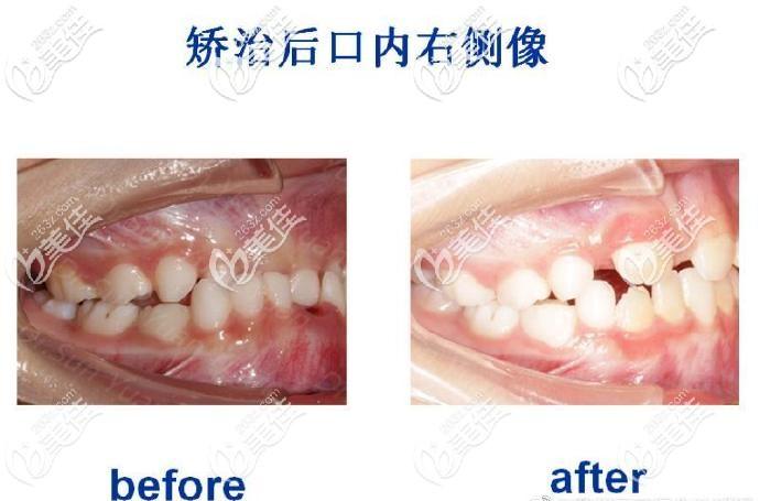 苏州牙博士口腔mrc牙齿矫正