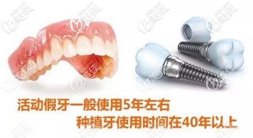 活动假牙和种植牙应该怎么选择