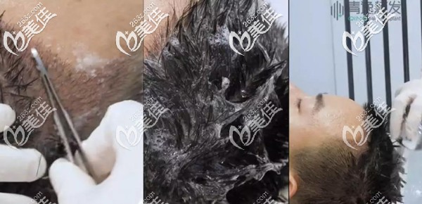 植发4天后清洗血痂步骤图