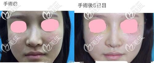 阪田和明鼻部整形案例