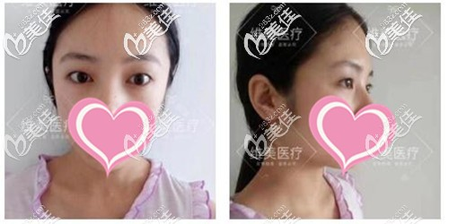 洛阳维美医疗美容诊所陈海涛术前照片1