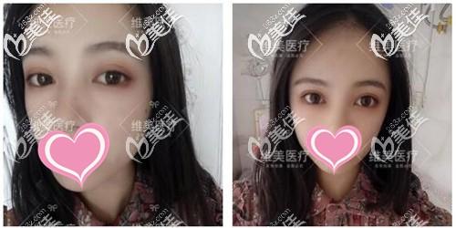 双眼皮手术后3个月