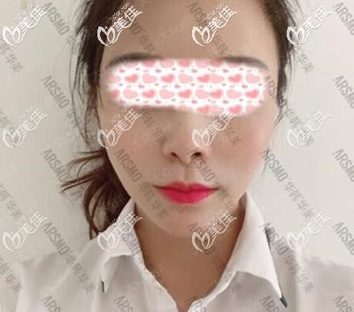 长沙华韩华美医疗美容医院孙玥玥术后照片1