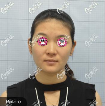 北京欧扬医疗美容门诊部李翰林术前照片1