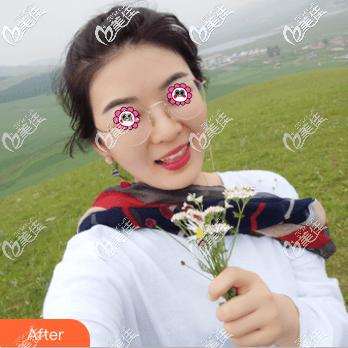 北京欧扬医疗美容门诊部李翰林术后照片1