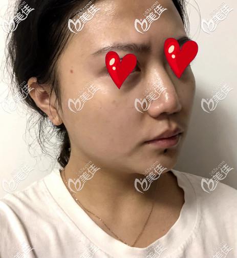 济南鹏爱美容整形医院李罡术前照片1