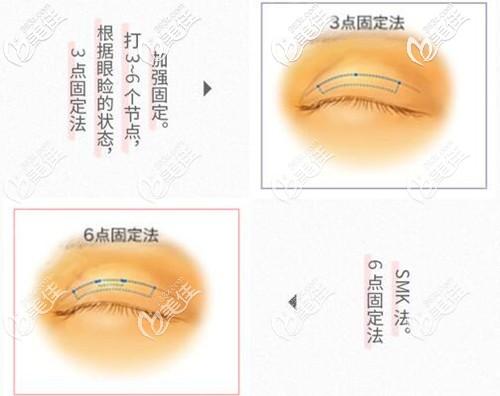 永井医生的埋线双眼皮和传统埋线法的区别