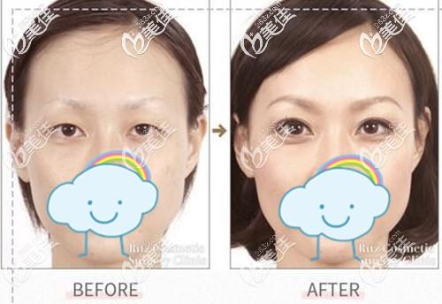 做埋线双眼皮术前术后改善效果