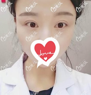 内切眼袋手术1-10天图片