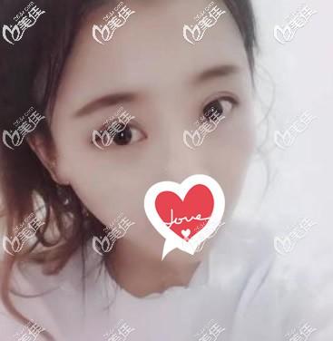 兰州韩美医疗美容门诊部阳赞军术后照片1
