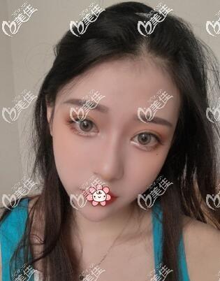 贵阳美莱医疗美容医院罗曼术后照片1
