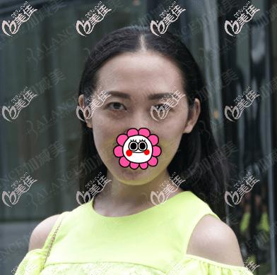 北京加减美医疗美容门诊部潘主任术前照片1