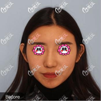 北京艺星医疗美容医院谷亦涵术前照片1