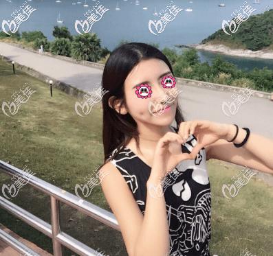 北京艺星医疗美容医院谷亦涵术后照片1