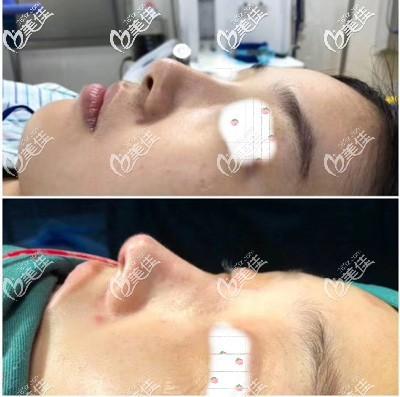 池州灵创医美医疗美容门诊部詹中山术后照片1