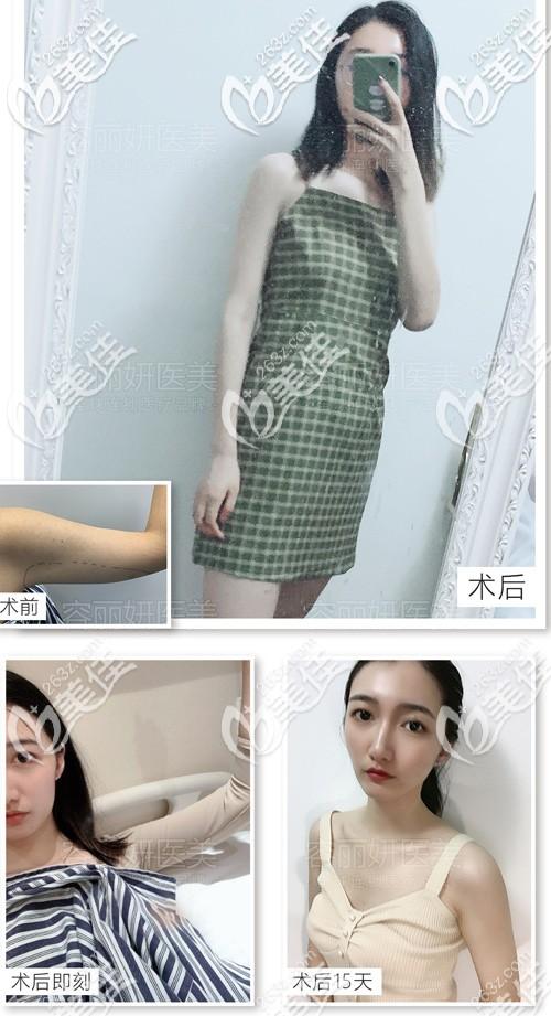 南京容丽妍医疗美容门诊部王金玉术前照片1