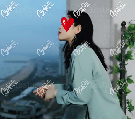 济南艺星整形医院杨季涛术后照片1