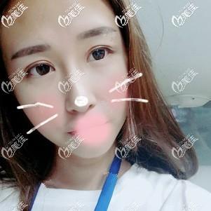 衡水尚美医疗美容门诊部冯小军术后照片1