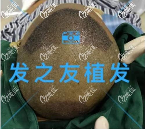 植发头顶加密和发际线进行!分享南宁发之友微针植发3500单位效果图