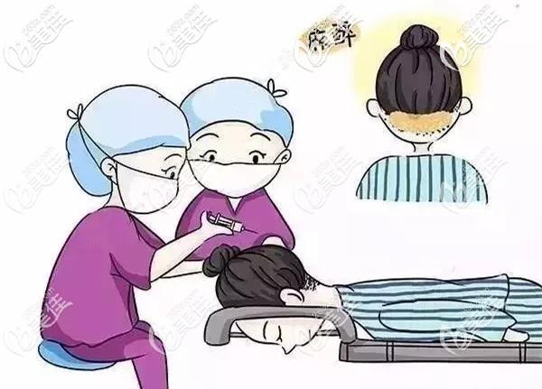 植发手术局部麻醉