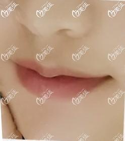 """做嘴唇切薄手术及m唇前,我也问过""""为什么厚唇改薄又反弹了""""这个问题!"""