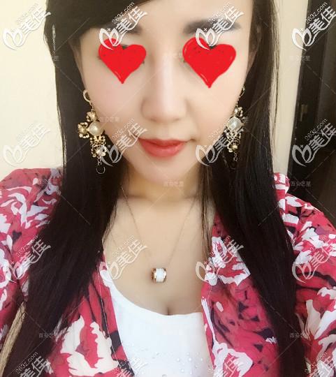 西安艺星玻尿酸丰唇术后20天
