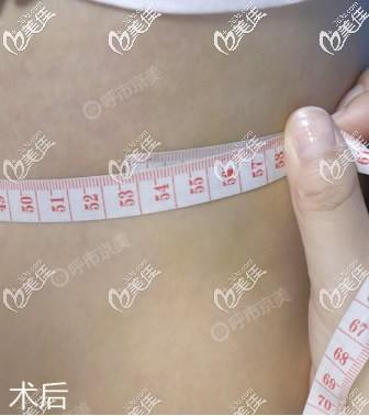 呼和浩特抽脂好的医院我推荐京美,在京美做了水动力腰腹吸脂2000ml后我的肚子瘦了一大圈!