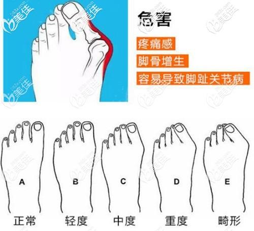 大脚骨对身体造成的危害