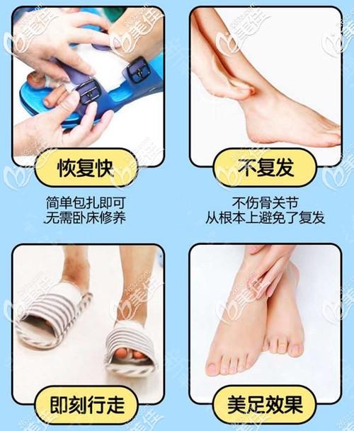 微创大脚骨手术的优势