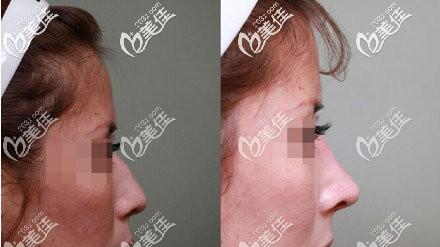 好奇谁做过睫毛毛囊种植手术的人是不是想要做啊?分享下我的睫毛移植手术效果给你参考下