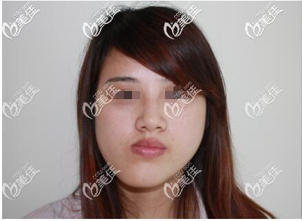 苏州金阊医疗美容医院韦敏术前照片1