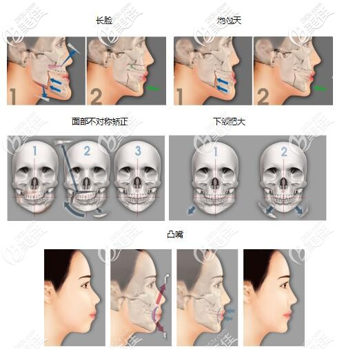韦氏-两颚正颌术可以解决改善多种问题
