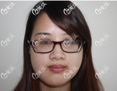 苏州金阊医疗美容医院韦敏术后照片1