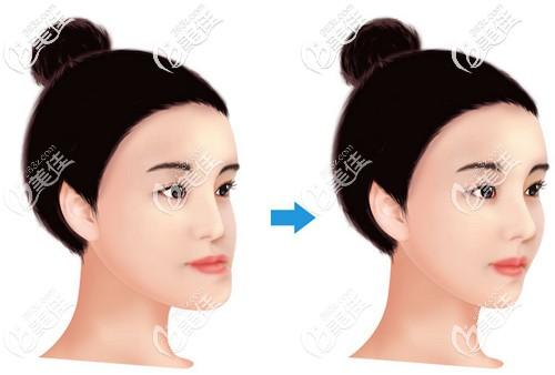 通过正畸正颌手术改善