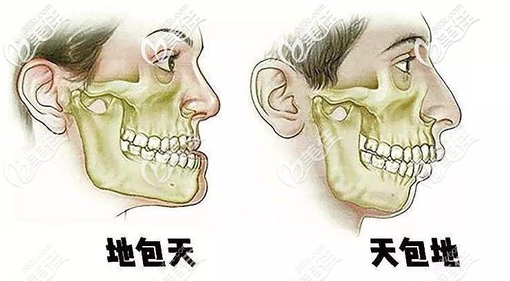 骨性地包天、龅牙都能改善