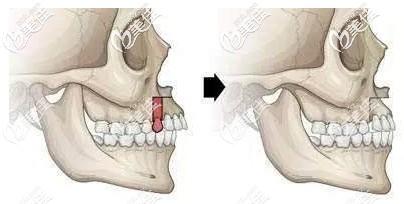 正颌手术可能会有后遗症