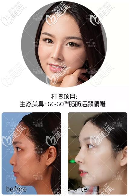 这就是李战强做的鼻综合隆鼻子案例