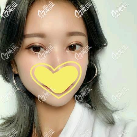 分享我找武汉艾美樊辉华割双眼皮60天恢复过程图片,朋友都说自然又美艳