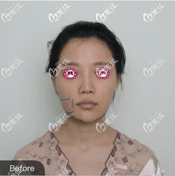 北京艺美医疗美容诊所王东术前照片1