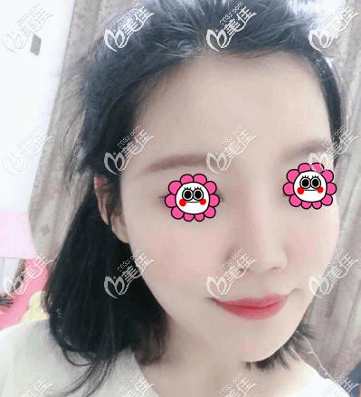 亲身体验北京艺美王东不开刀去颌角手术感觉医院不仅正规也挺可靠的
