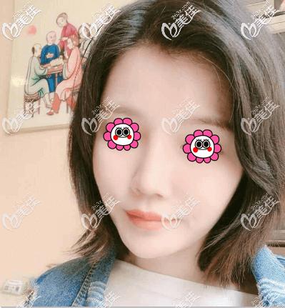 北京艺美王东不开刀去下颌角案例效果