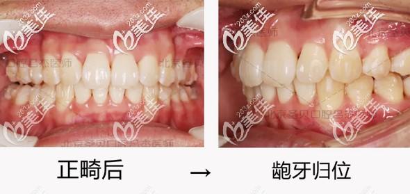 北京圣贝牙科牙齿矫正案例-吕杰医生用invisalign隐形牙套拯救小哥哥被暴牙影响的颜值