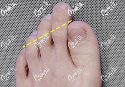 二脚趾过长对我们的影响