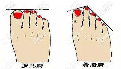 脚趾缩短手术可以改善的形态