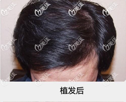 讲述我去广州壹加壹做头顶植发的亲身经历,花了三万多的价格,效果怎样你们来看!