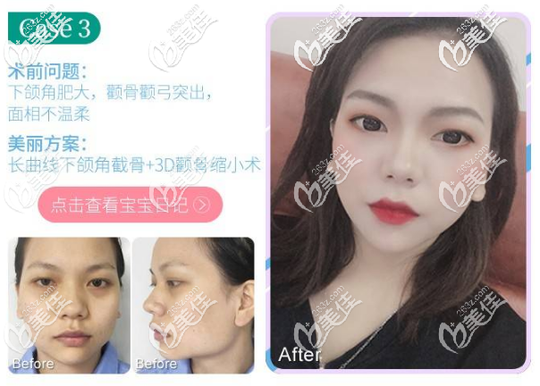 广州广大柳超医生颧骨内推和下颌角整形真人案例