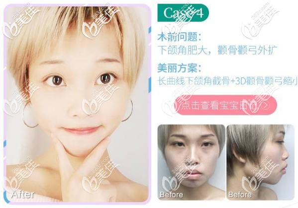看广州广大柳超医生做颧骨下颌角技术怎么样