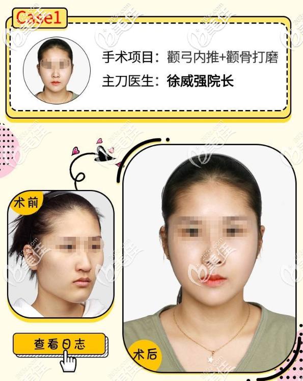 真实颧骨内推整形案例告诉你广州徐威强磨骨怎么样
